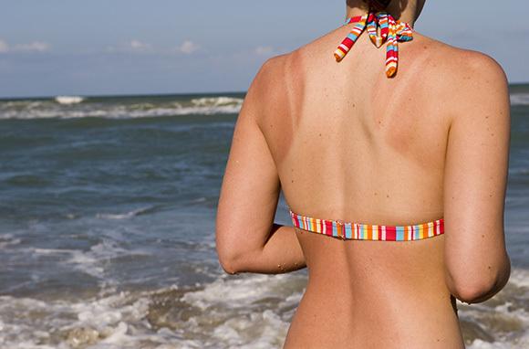 Worst Sunburn Spots