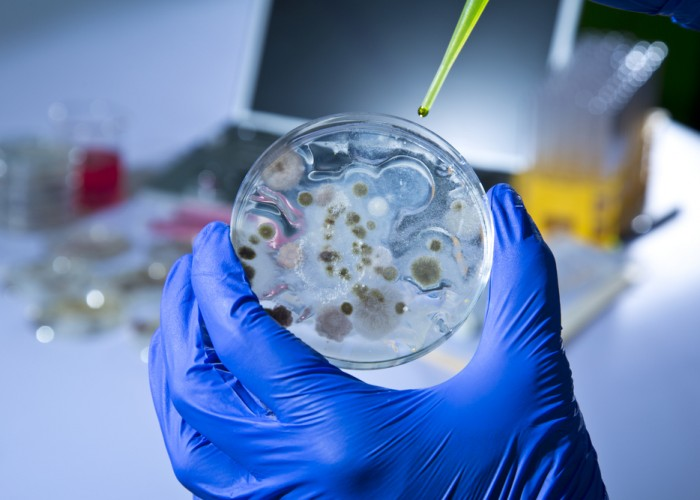 How the Ebola Outbreak Could Affect U.S. Travelers