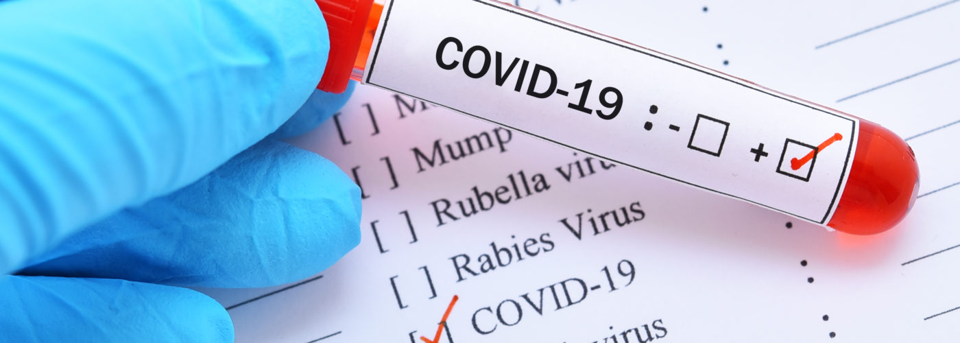 Positive COVID-19 test